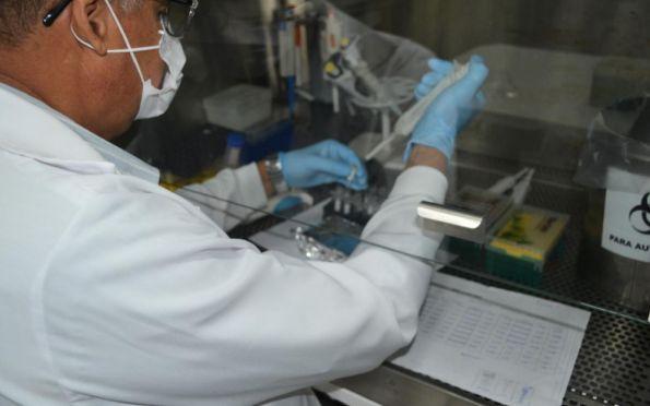 Lacen amplia pesquisa do coronavirus através de parceria com Fiocruz